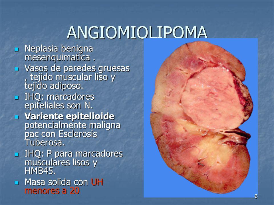 ANGIOMIOLIPOMA Neplasia benigna mesenquimatica.Neplasia benigna mesenquimatica.