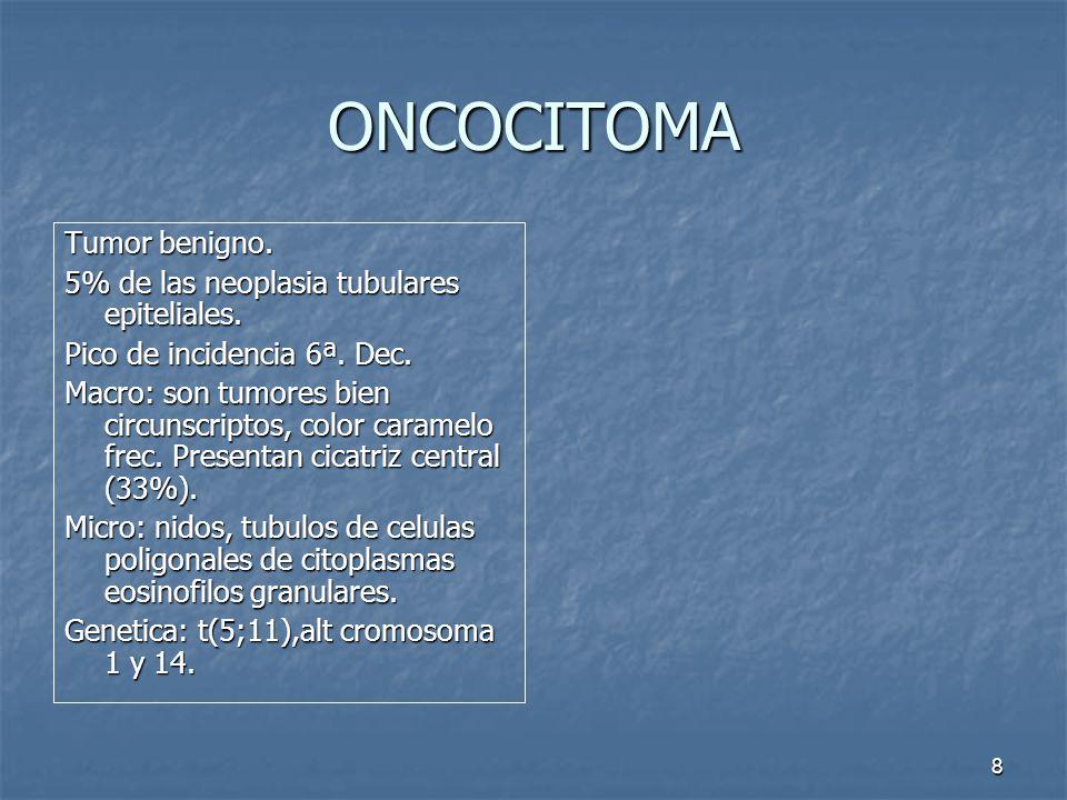 ONCOCITOMA Tumor benigno.5% de las neoplasia tubulares epiteliales.