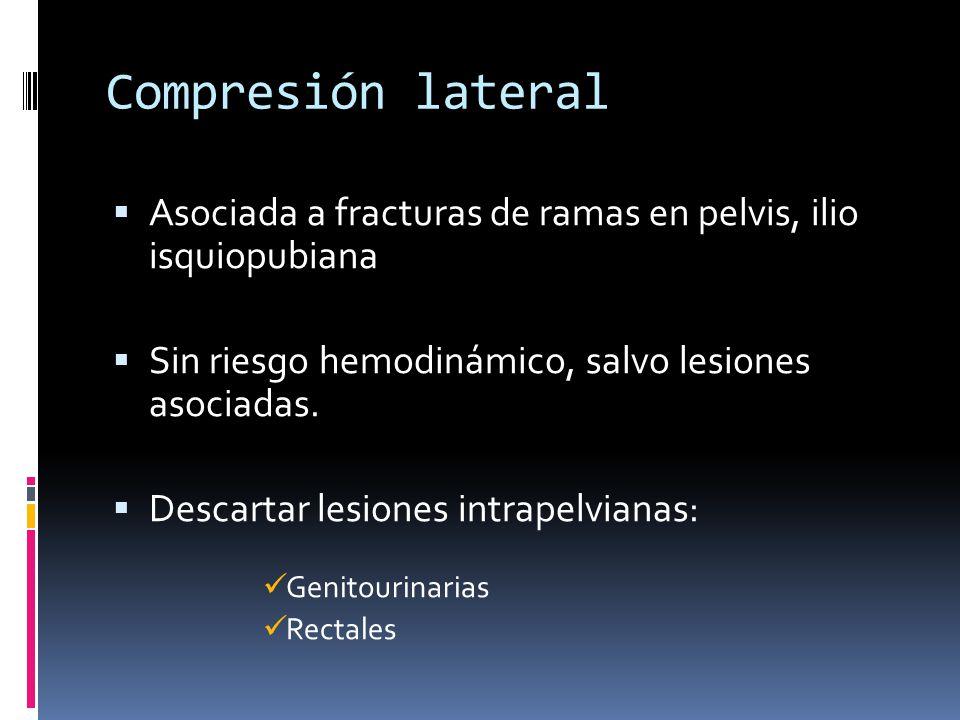Compresión lateral Asociada a fracturas de ramas en pelvis, ilio isquiopubiana Sin riesgo hemodinámico, salvo lesiones asociadas. Descartar lesiones i