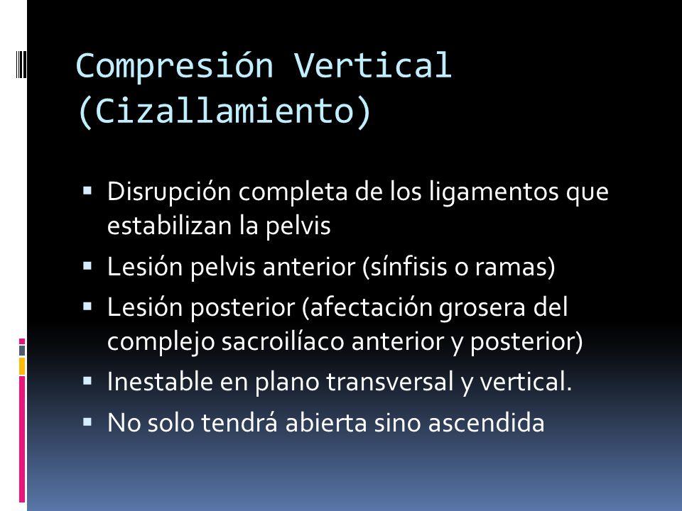 Compresión Vertical (Cizallamiento) Disrupción completa de los ligamentos que estabilizan la pelvis Lesión pelvis anterior (sínfisis o ramas) Lesión p