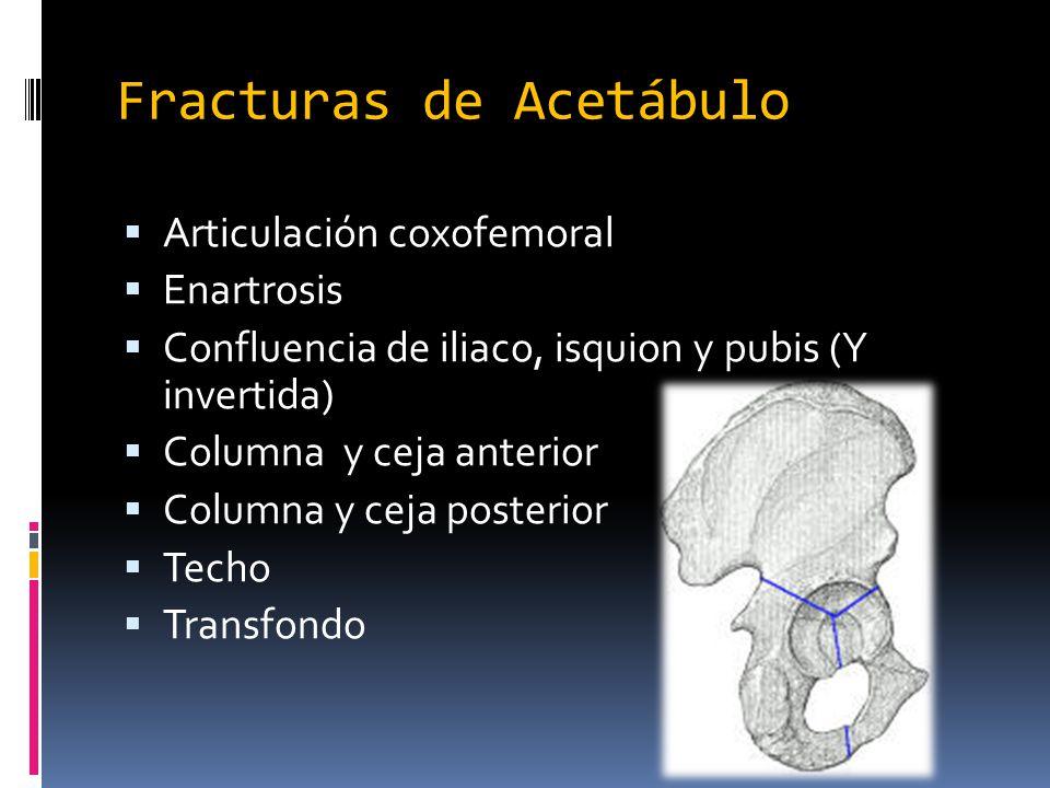 Fracturas de Acetábulo Articulación coxofemoral Enartrosis Confluencia de iliaco, isquion y pubis (Y invertida) Columna y ceja anterior Columna y ceja
