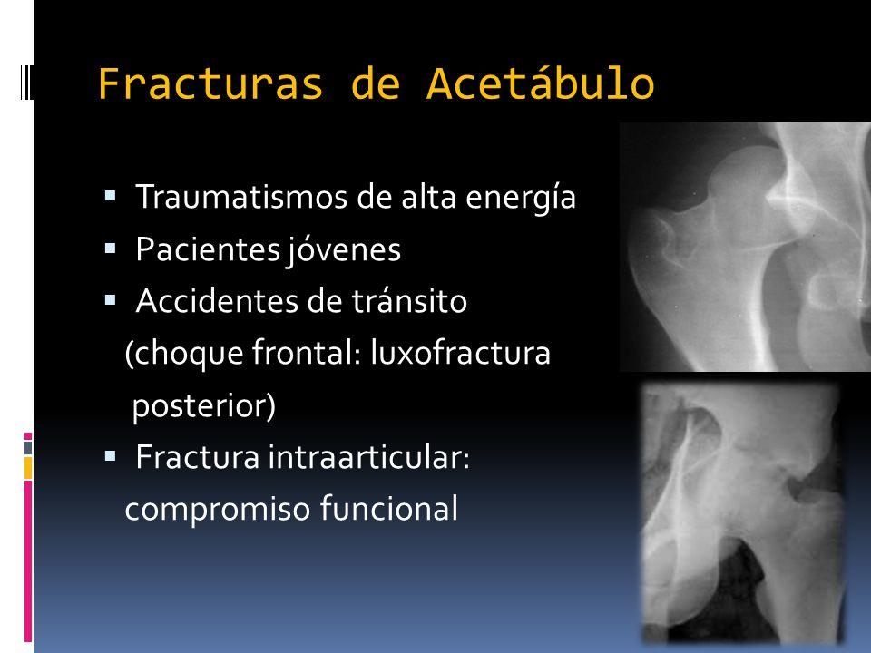 Fracturas de Acetábulo Traumatismos de alta energía Pacientes jóvenes Accidentes de tránsito (choque frontal: luxofractura posterior) Fractura intraar