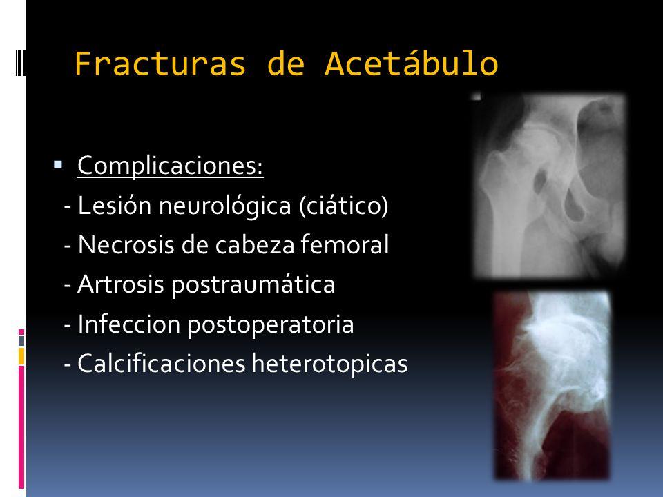 Fracturas de Acetábulo Complicaciones: - Lesión neurológica (ciático) - Necrosis de cabeza femoral - Artrosis postraumática - Infeccion postoperatoria