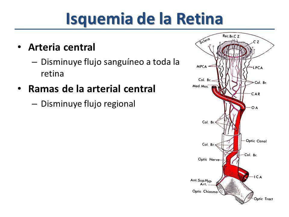 Isquemia de la Retina Arteria central – Disminuye flujo sanguíneo a toda la retina Ramas de la arterial central – Disminuye flujo regional