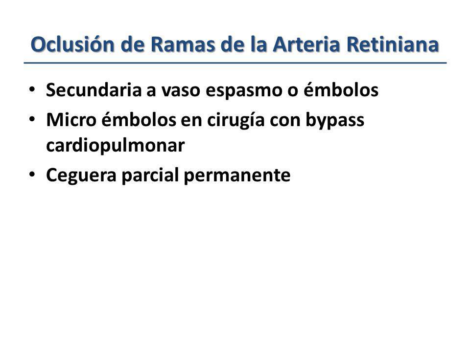 Oclusión de Ramas de la Arteria Retiniana Secundaria a vaso espasmo o émbolos Micro émbolos en cirugía con bypass cardiopulmonar Ceguera parcial perma