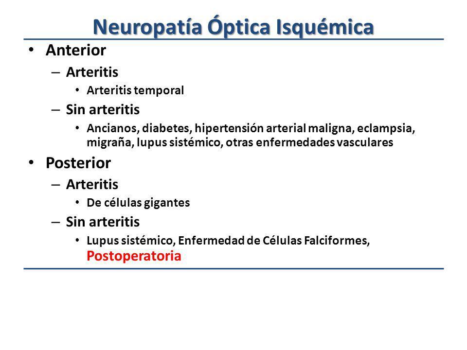 Neuropatía Óptica Isquémica Anterior – Arteritis Arteritis temporal – Sin arteritis Ancianos, diabetes, hipertensión arterial maligna, eclampsia, migr