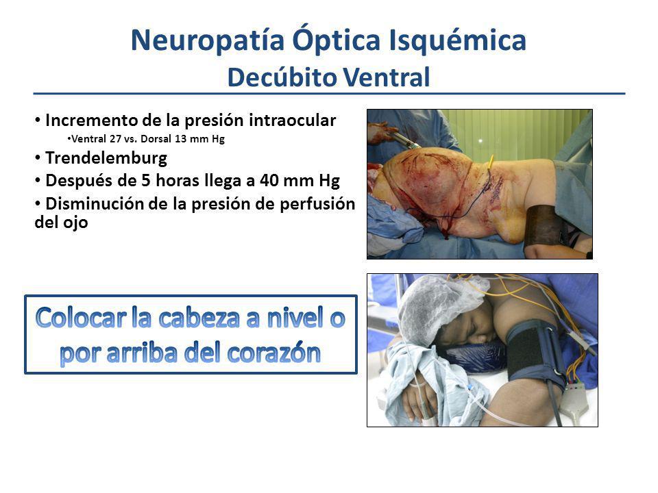 Neuropatía Óptica Isquémica Decúbito Ventral Incremento de la presión intraocular Ventral 27 vs. Dorsal 13 mm Hg Trendelemburg Después de 5 horas lleg