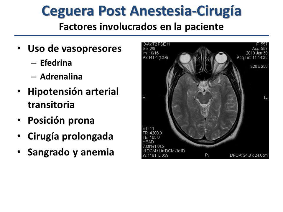 Ceguera Post Anestesia-Cirugía Ceguera Post Anestesia-Cirugía Factores involucrados en la paciente Uso de vasopresores – Efedrina – Adrenalina Hipoten