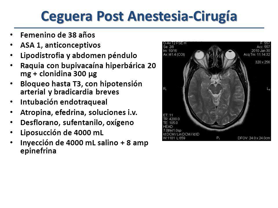 Datos Oftalmológicos y de Imagen en la Oclusión de la Arterial Central de la Retina Edema macular Edema de retina Manchas rojas Vasos retinianos atenueados Pigmentaciones de retina Protosis Tumefacción o edema de músculos extraoculares