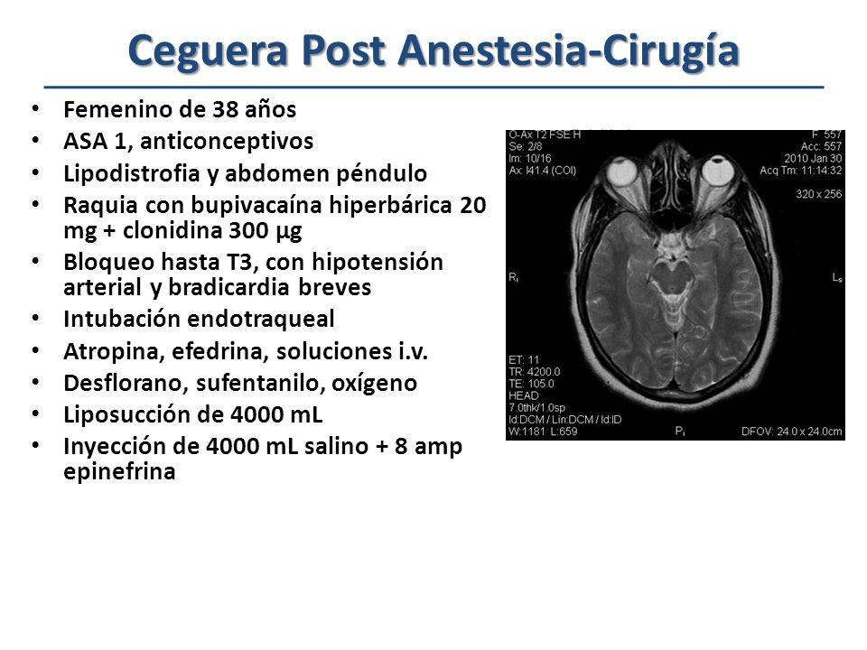 Ceguera Post Anestesia-Cirugía Ceguera Post Anestesia-Cirugía Factores involucrados en la paciente Uso de vasopresores – Efedrina – Adrenalina Hipotensión arterial transitoria Posición prona Cirugía prolongada Sangrado y anemia