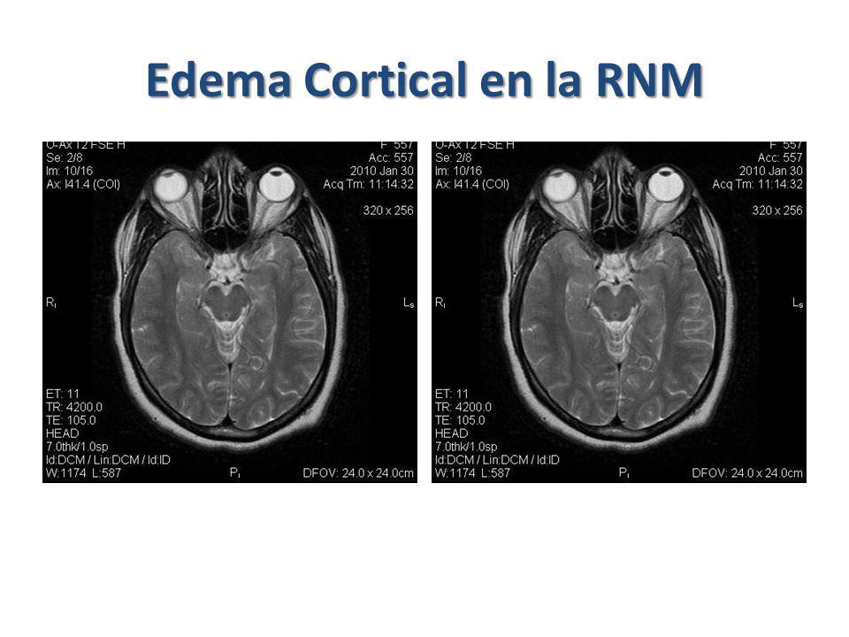 Oclusión de Ramas de la Arteria Retiniana Secundaria a vaso espasmo o émbolos Micro émbolos en cirugía con bypass cardiopulmonar Ceguera parcial permanente