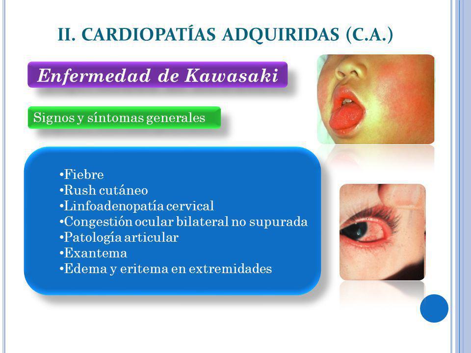 Signos y síntomas generales II. CARDIOPATÍAS ADQUIRIDAS (C.A.) Fiebre Rush cutáneo Linfoadenopatía cervical Congestión ocular bilateral no supurada Pa