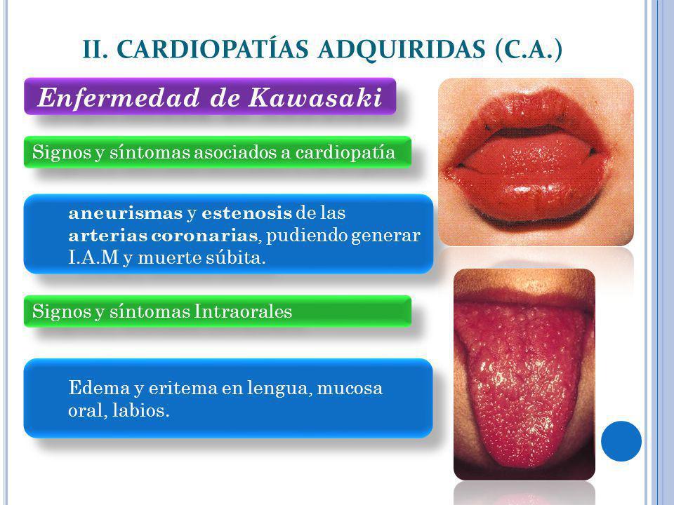 Signos y síntomas asociados a cardiopatía II. CARDIOPATÍAS ADQUIRIDAS (C.A.) aneurismas y estenosis de las arterias coronarias, pudiendo generar I.A.M