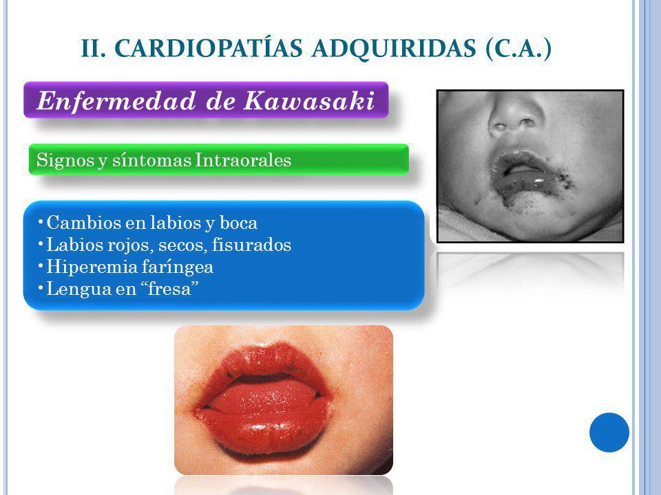 II. CARDIOPATÍAS ADQUIRIDAS (C.A.) Signos y síntomas Intraorales Cambios en labios y boca Labios rojos, secos, fisurados Hiperemia faríngea Lengua en