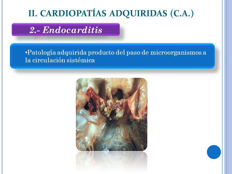 2.- Endocarditis II. CARDIOPATÍAS ADQUIRIDAS (C.A.) Patología adquirida producto del paso de microorganismos a la circulación sistémica