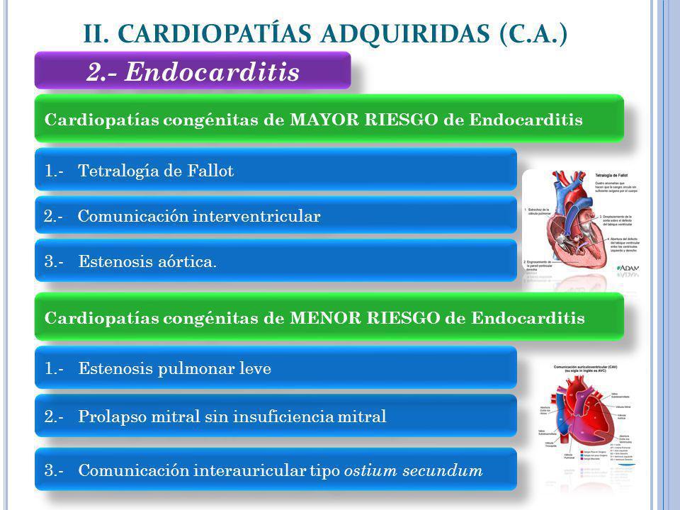 2.- Endocarditis II. CARDIOPATÍAS ADQUIRIDAS (C.A.) Cardiopatías congénitas de MAYOR RIESGO de Endocarditis 1.- Tetralogía de Fallot 2.- Comunicación