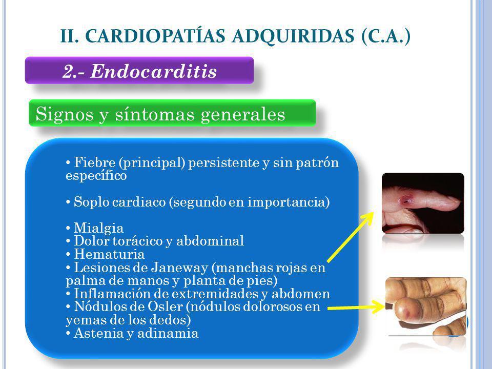 Signos y síntomas generales II. CARDIOPATÍAS ADQUIRIDAS (C.A.) Fiebre (principal) persistente y sin patrón específico Soplo cardiaco (segundo en impor
