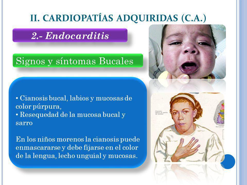 Signos y síntomas Bucales II. CARDIOPATÍAS ADQUIRIDAS (C.A.) Cianosis bucal, labios y mucosas de color púrpura, Resequedad de la mucosa bucal y sarro