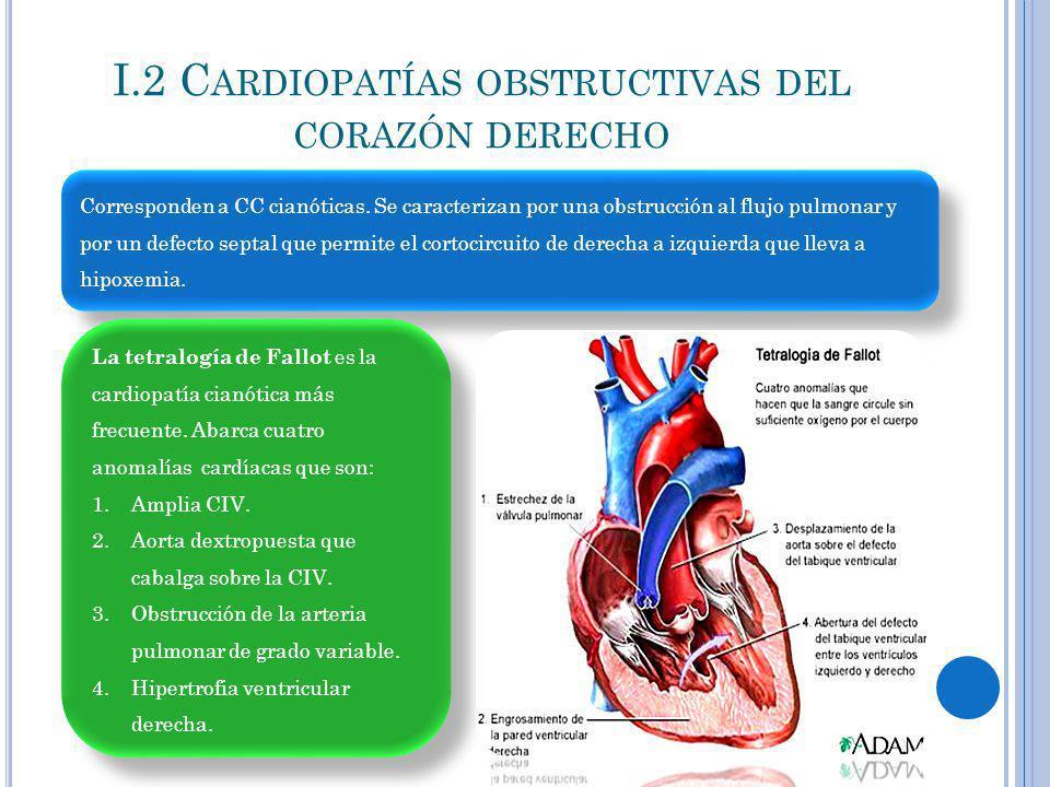 I.2 C ARDIOPATÍAS OBSTRUCTIVAS DEL CORAZÓN DERECHO Corresponden a CC cianóticas. Se caracterizan por una obstrucción al flujo pulmonar y por un defect
