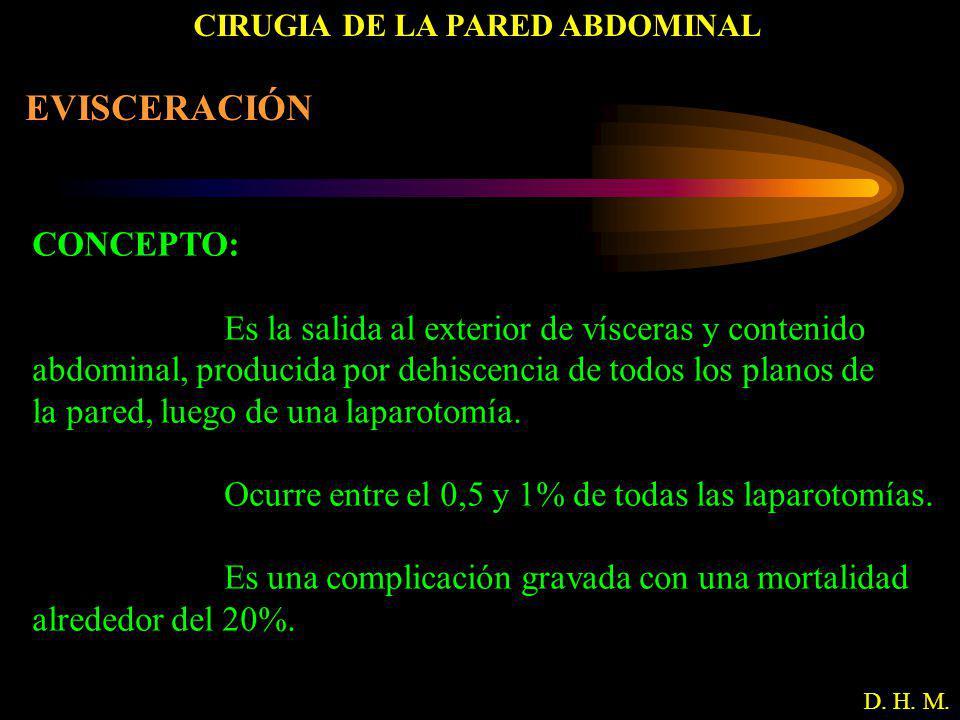 CIRUGIA DE LA PARED ABDOMINAL D. H. M. EVISCERACIÓN CONCEPTO: Es la salida al exterior de vísceras y contenido abdominal, producida por dehiscencia de