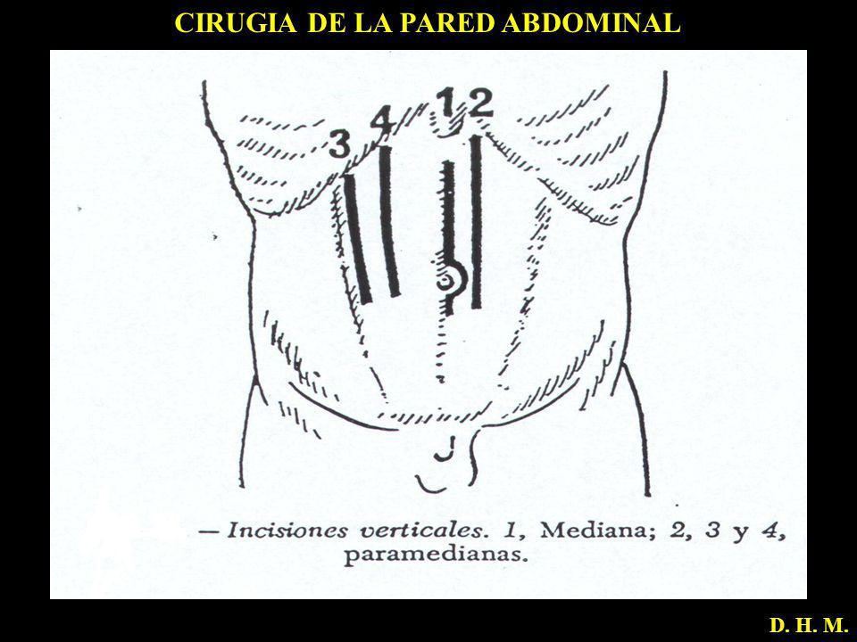 CIRUGIA DE LA PARED ABDOMINAL D. H. M.