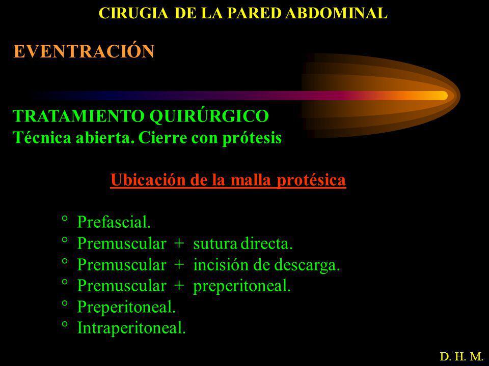 CIRUGIA DE LA PARED ABDOMINAL D. H. M. EVENTRACIÓN TRATAMIENTO QUIRÚRGICO Técnica abierta. Cierre con prótesis Ubicación de la malla protésica ° Prefa