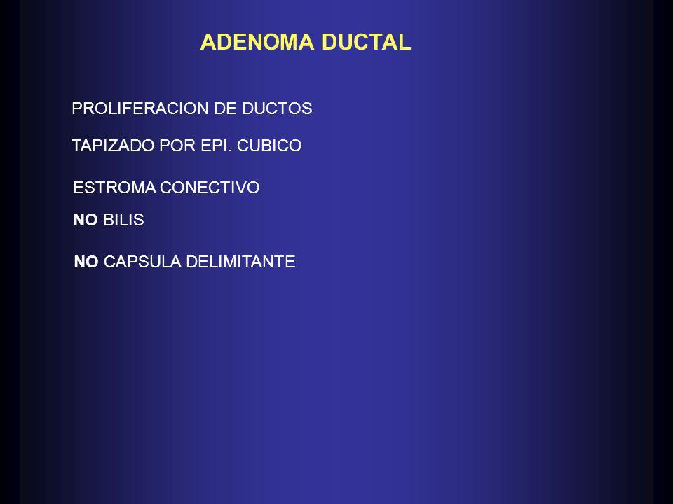 ADENOMA DUCTAL PROLIFERACION DE DUCTOS TAPIZADO POR EPI.
