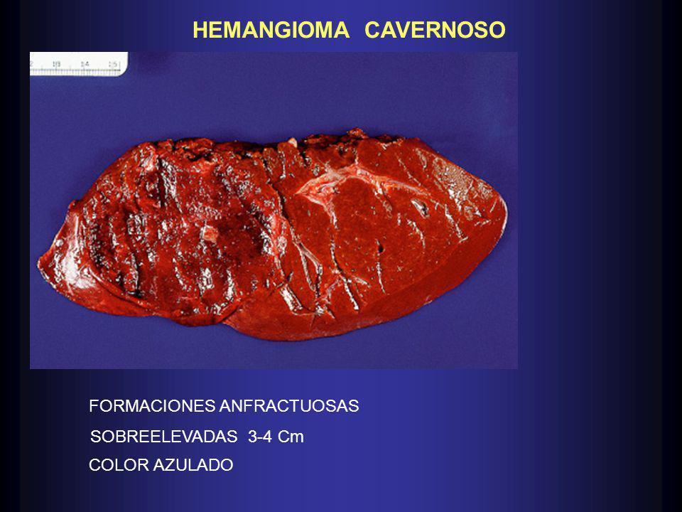 HEMANGIOMA CAVERNOSO FORMACIONES ANFRACTUOSAS SOBREELEVADAS 3-4 Cm COLOR AZULADO