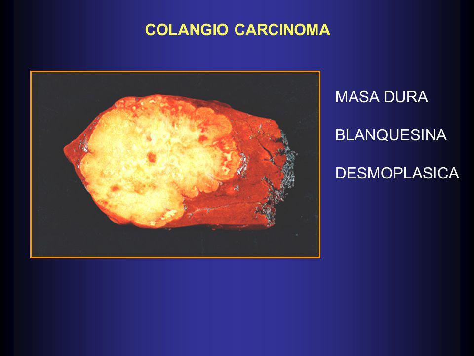 COLANGIO CARCINOMA MASA DURA BLANQUESINA DESMOPLASICA