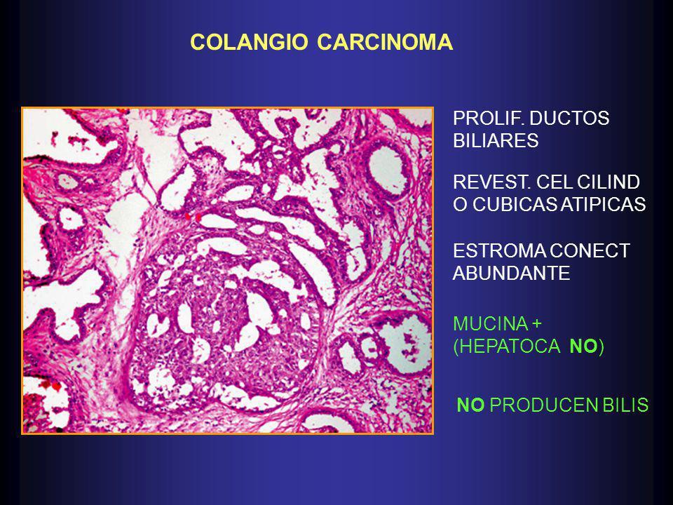 COLANGIO CARCINOMA PROLIF.DUCTOS BILIARES REVEST.