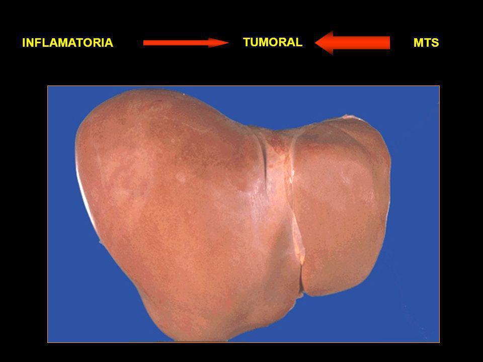 TUMORES HEPATICOS PRIMARIOS (poco frecuentes) SECUNDARIOS O METASTASICOS (Muy frecuentes) BENIGNOS MALIGNOS EPITELIALES VASCULARES EPITELIALES VASCULARES Intestino Grueso Riñon Páncreas Carcinoide Estómago Mama Pulmón Adenoma Hepatocitario Adenoma Ductal Carcinoma Hepatocelular Hemangioma cavernoso Hepatoblastoma Colangiocarcinoma Angiosarcoma