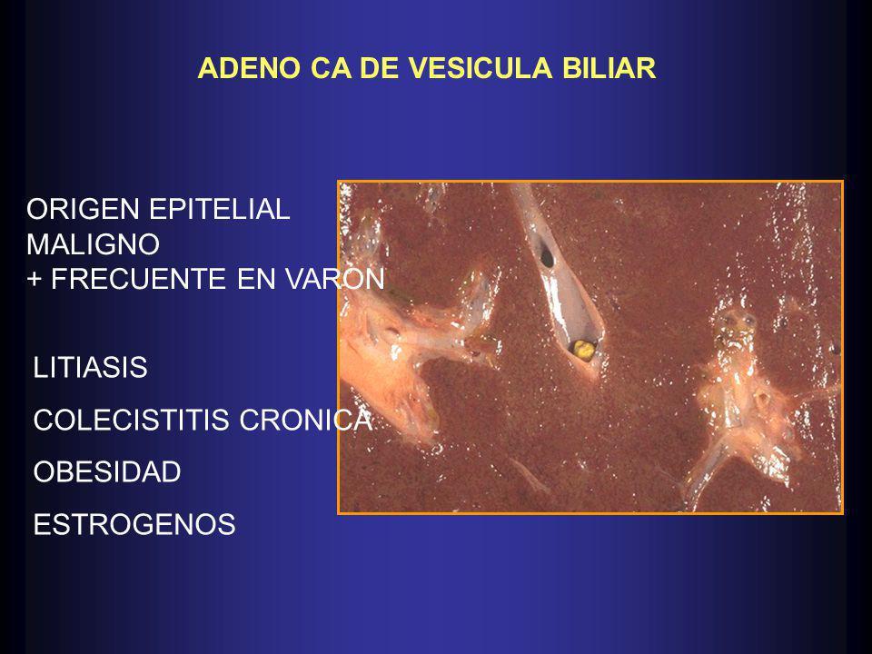 ADENO CA DE VESICULA BILIAR LITIASIS COLECISTITIS CRONICA OBESIDAD ESTROGENOS ORIGEN EPITELIAL MALIGNO + FRECUENTE EN VARON
