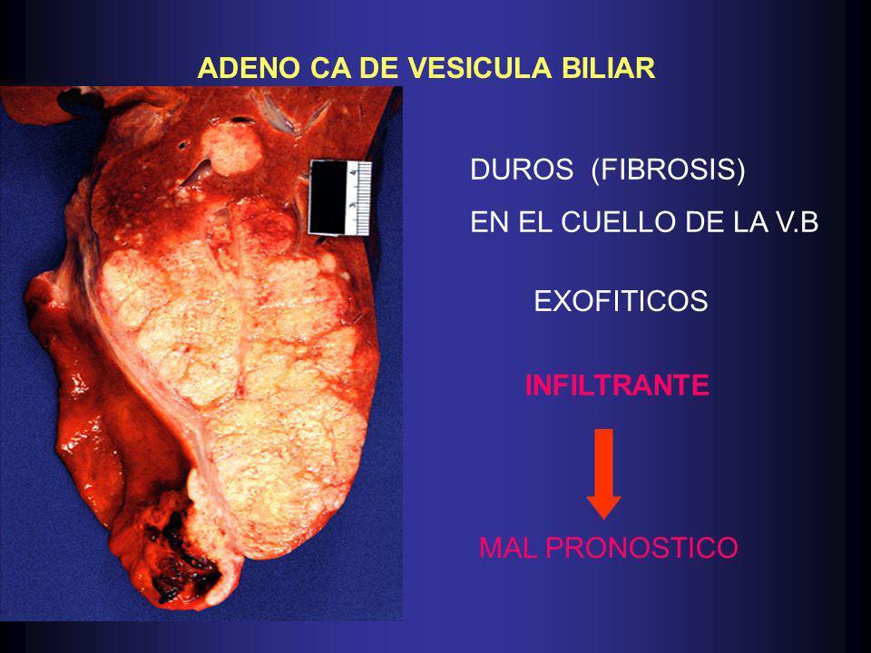 ADENO CA DE VESICULA BILIAR DUROS (FIBROSIS) EN EL CUELLO DE LA V.B EXOFITICOS INFILTRANTE MAL PRONOSTICO