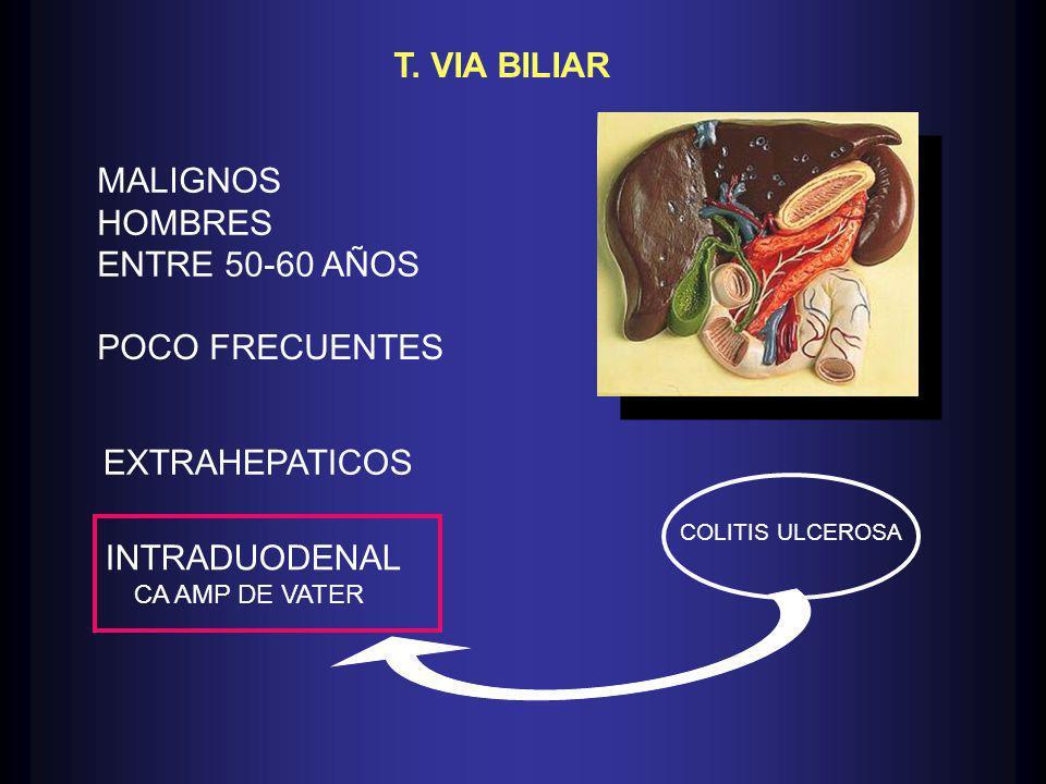 T. VIA BILIAR POCO FRECUENTES INTRADUODENAL CA AMP DE VATER MALIGNOS HOMBRES ENTRE 50-60 AÑOS COLITIS ULCEROSA EXTRAHEPATICOS