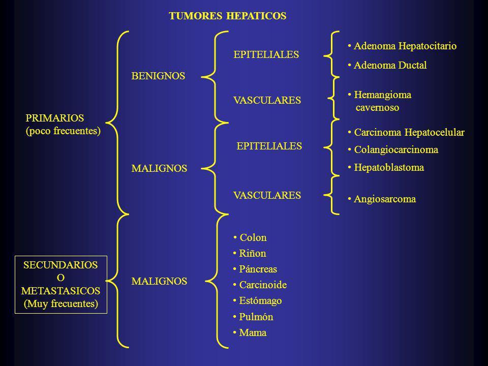 TUMORES HEPATICOS PRIMARIOS (poco frecuentes) SECUNDARIOS O METASTASICOS (Muy frecuentes) BENIGNOS MALIGNOS EPITELIALES VASCULARES EPITELIALES VASCULARES Colon Riñon Páncreas Carcinoide Estómago Mama Pulmón Adenoma Hepatocitario Adenoma Ductal Carcinoma Hepatocelular Hemangioma cavernoso Hepatoblastoma Colangiocarcinoma Angiosarcoma