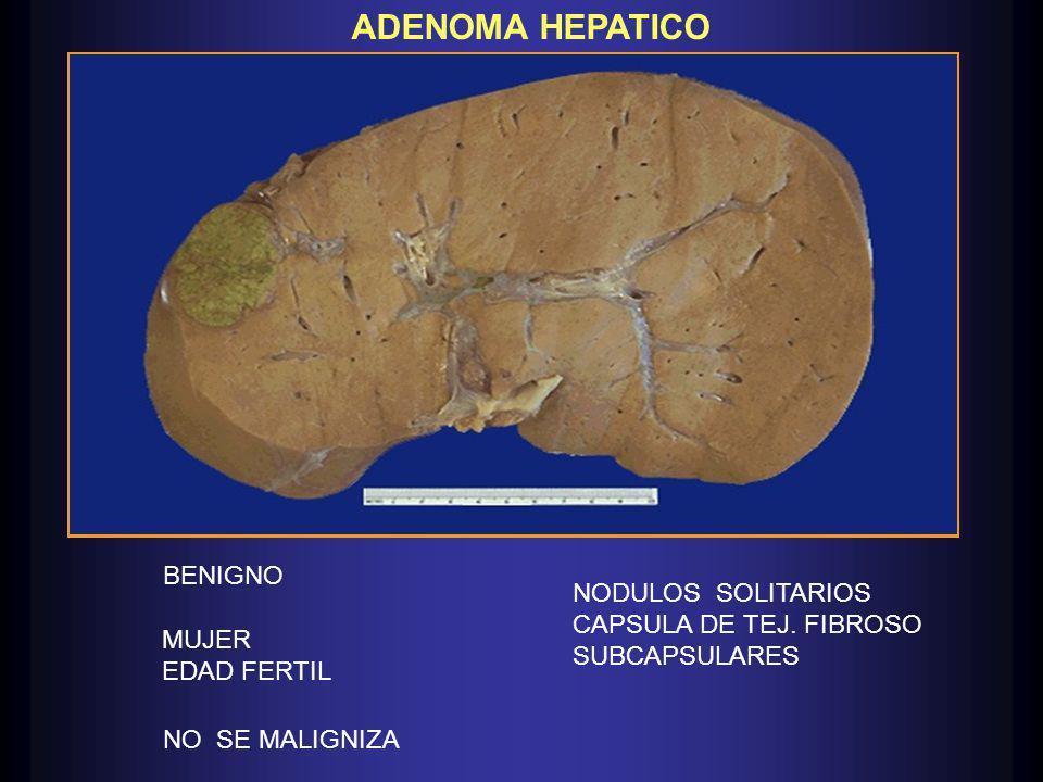 ADENOMA HEPATICO BENIGNO MUJER EDAD FERTIL NO SE MALIGNIZA NODULOS SOLITARIOS CAPSULA DE TEJ.