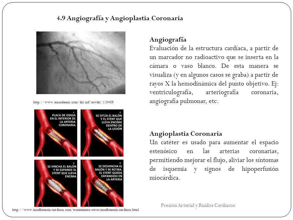 4.9 Angiografía y Angioplastia Coronaria Angiografía Evaluación de la estructura cardíaca, a partir de un marcador no radioactivo que se inserta en la