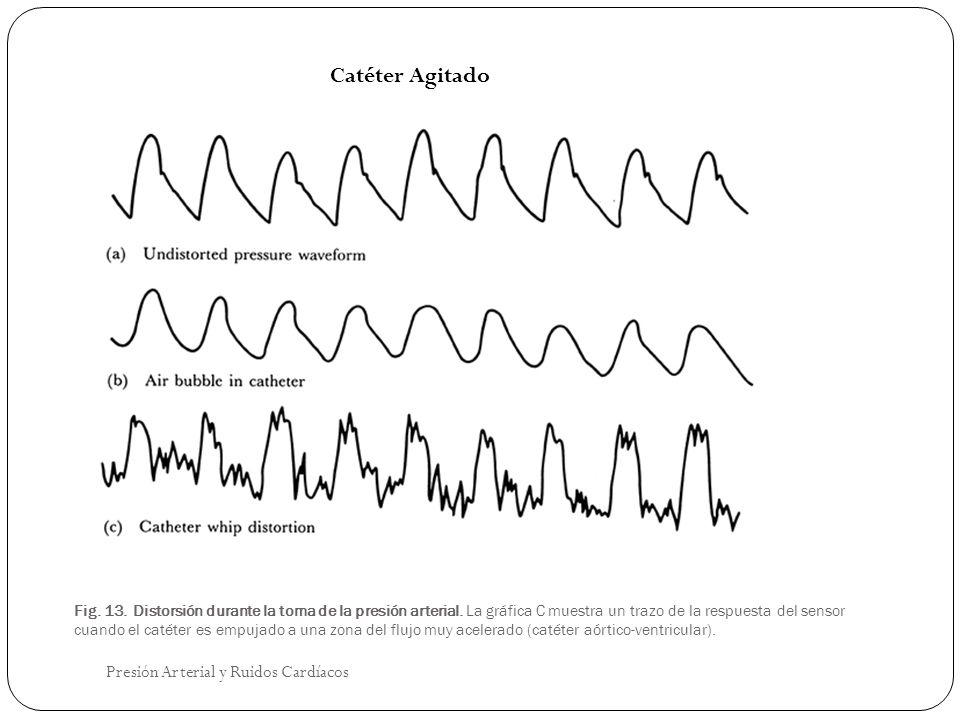 Fig. 13. Distorsión durante la toma de la presión arterial. La gráfica C muestra un trazo de la respuesta del sensor cuando el catéter es empujado a u