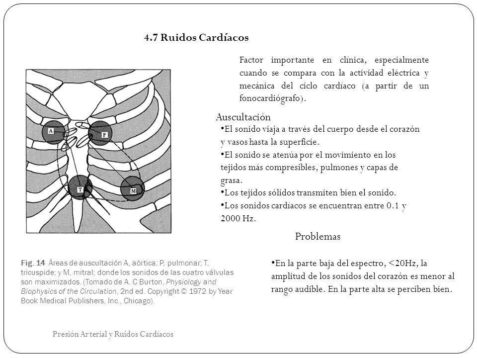 Fig. 14 Áreas de auscultación A, aórtica; P, pulmonar; T, tricuspide; y M, mitral; donde los sonidos de las cuatro válvulas son maximizados. (Tomado d