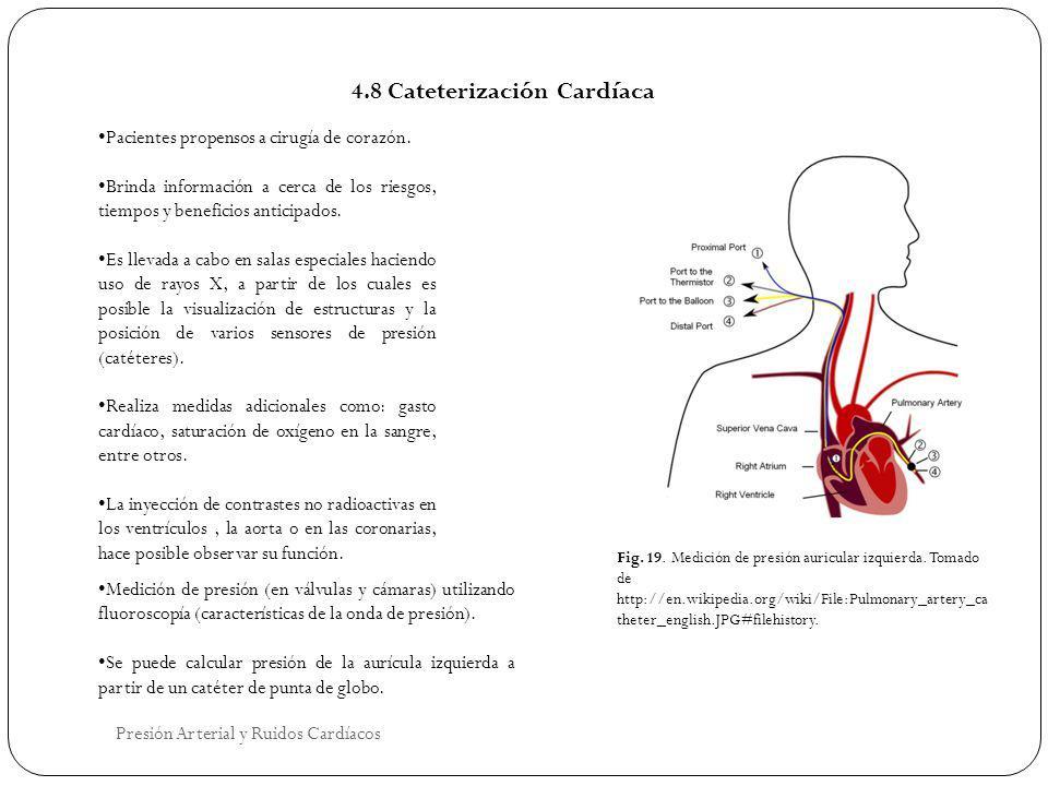 4.8 Cateterización Cardíaca Pacientes propensos a cirugía de corazón. Brinda información a cerca de los riesgos, tiempos y beneficios anticipados. Es