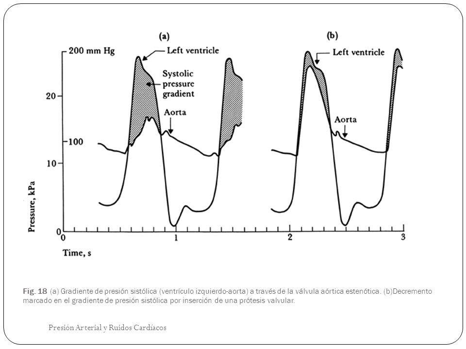 Fig. 18 (a) Gradiente de presión sistólica (ventrículo izquierdo-aorta) a través de la válvula aórtica estenótica. (b)Decremento marcado en el gradien