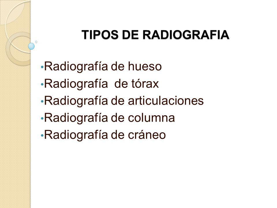 TIPOS DE RADIOGRAFIA Radiografía de hueso Radiografía de tórax Radiografía de articulaciones Radiografía de columna Radiografía de cráneo