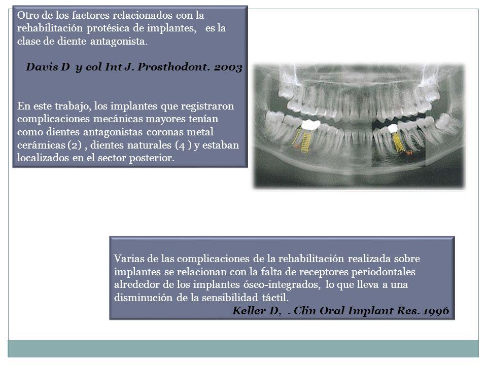 Otro de los factores relacionados con la rehabilitación protésica de implantes, es la clase de diente antagonista. Davis D y col Int J. Prosthodont. 2