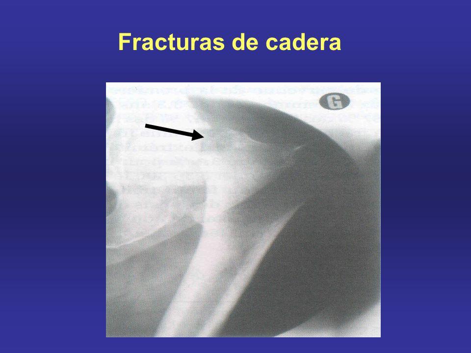 Costo de la enfermedad Europa anualmente 2.7 millones de fracturas y Costo: $36 billones de Euros Osteoporos Int (2008)