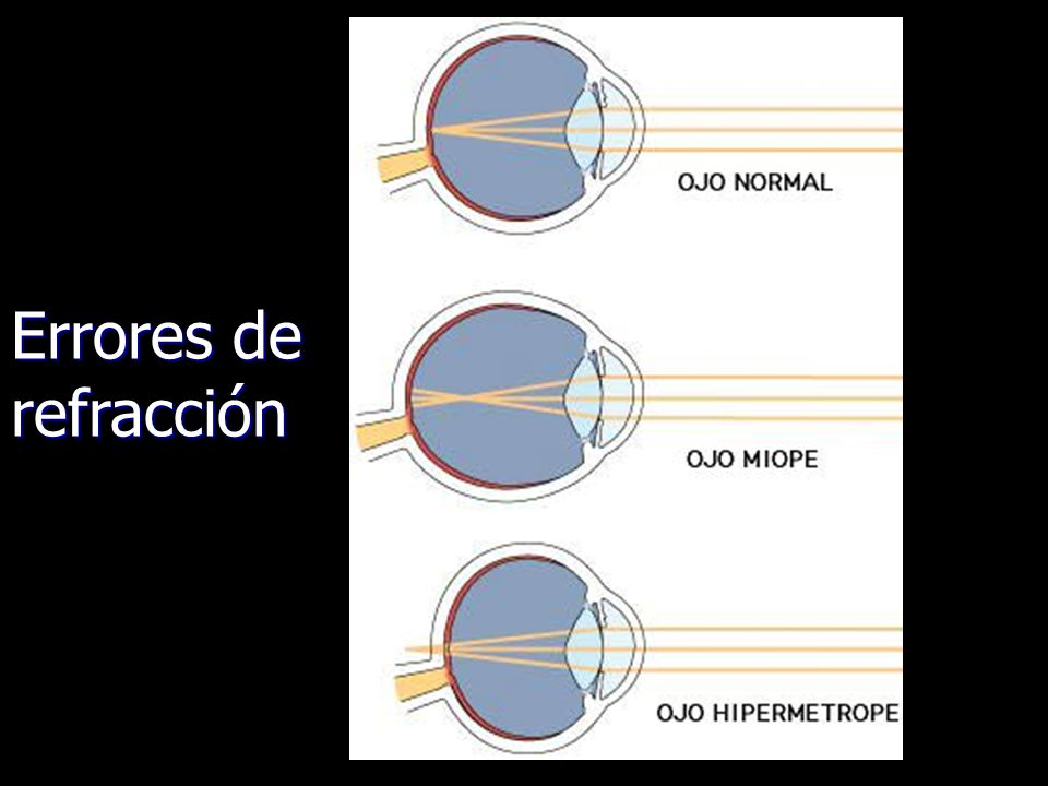 Errores de refracción