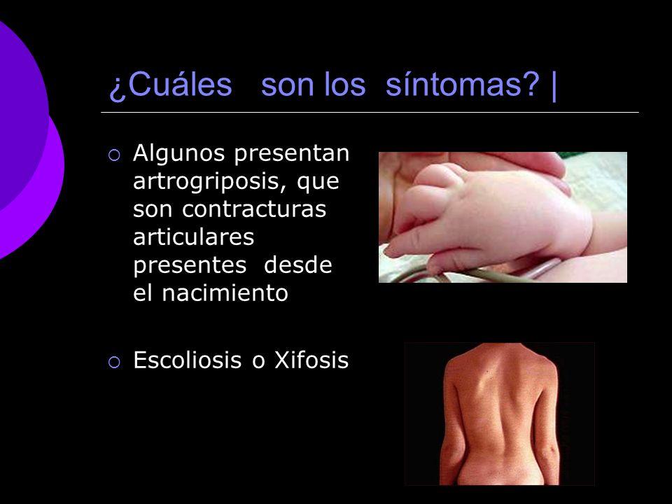 ¿Cuáles son los síntomas? | Algunos presentan artrogriposis, que son contracturas articulares presentes desde el nacimiento Escoliosis o Xifosis