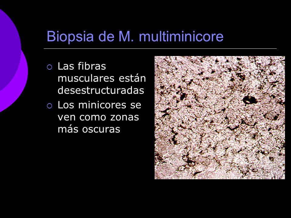 Biopsia de M. multiminicore Las fibras musculares están desestructuradas Los minicores se ven como zonas más oscuras
