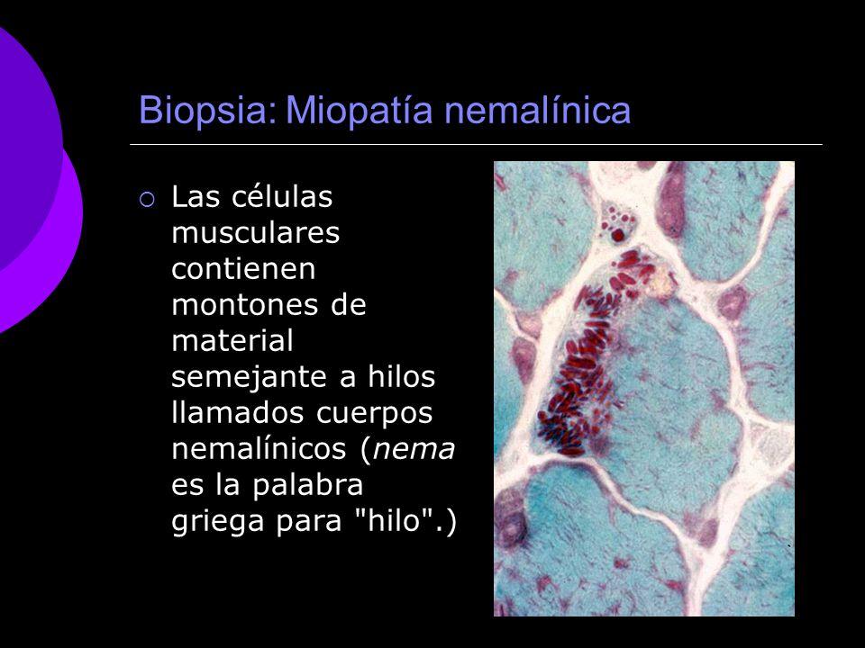 Biopsia: Miopatía nemalínica Las células musculares contienen montones de material semejante a hilos llamados cuerpos nemalínicos (nema es la palabra