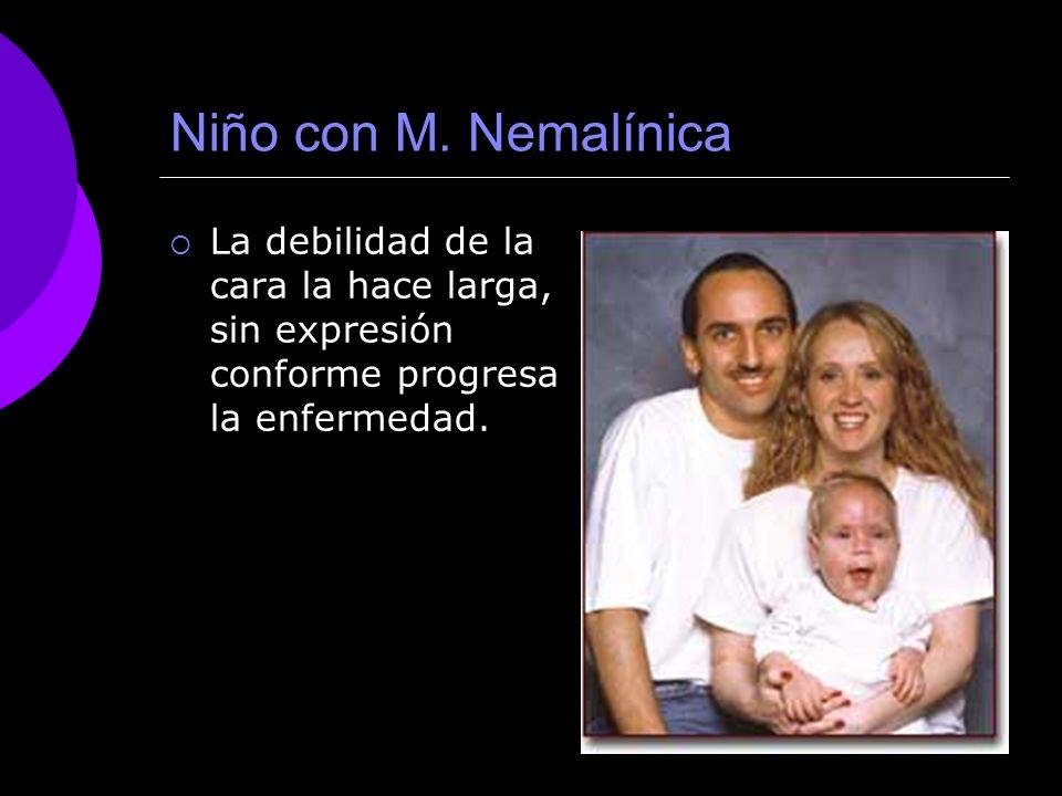 Niño con M. Nemalínica La debilidad de la cara la hace larga, sin expresión conforme progresa la enfermedad.