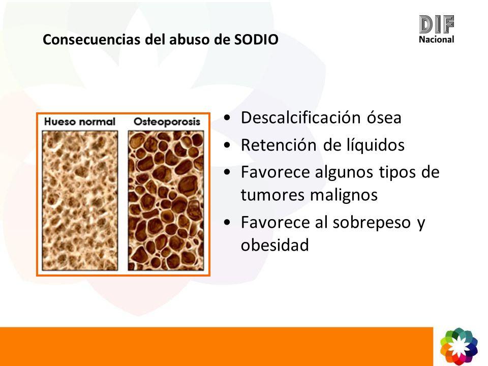 Descalcificación ósea Retención de líquidos Favorece algunos tipos de tumores malignos Favorece al sobrepeso y obesidad Consecuencias del abuso de SOD